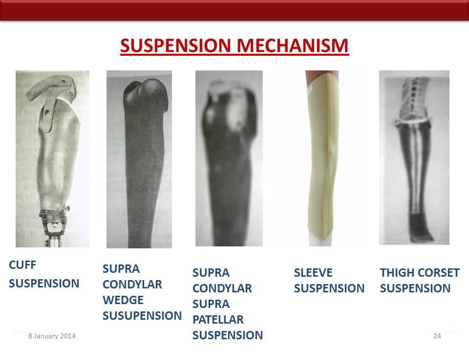 Below Knee Transtibial Amputation - YouTube