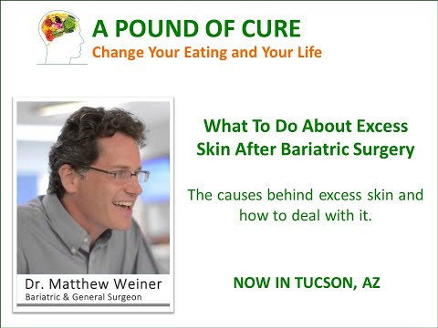 What to Do About Excess Skin After Bariatric Surgery –