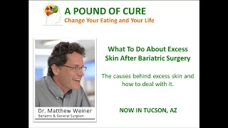 What to Do About Excess Skin After Bariatric Surgery -