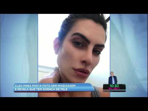 Hora da Venenosa: Cleo Pires posta foto sem maquiagem e revela doença de pele