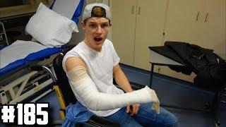 ENZO BREEKT ARM! - ENZOKNOL VLOG #185