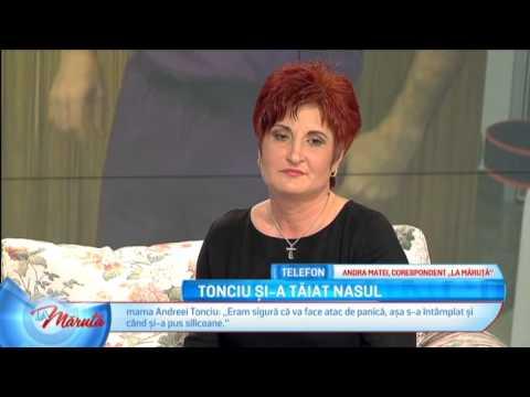 Andreea Tonciu Operatie de Nas in Turcia