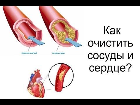 Как очистить сосуды и сердце?