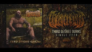COLPOCLEISIS - THIRD DEGREE GURNS [SINGLE] (2020) SW EXCLUSIVE