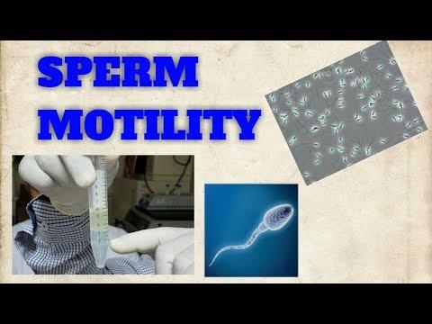 Sperm motility/Sperm motility video/Sperm count/Sperm motility under Microscope/STAR LABORATORY