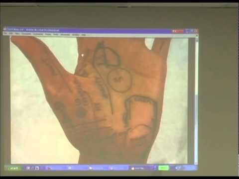 Palm Reading & Hand Diagnosis -- Online Acupuncture CEU / PDA