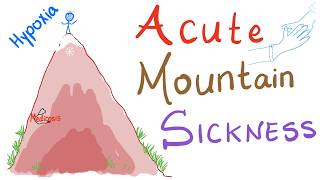 Acute Mountain Sickness (AMS); What Happens Up There 👆