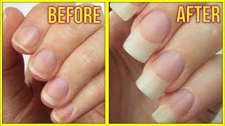 सिर्फ एक घंटे में नेल्स को कैसे बढ़ाएं   Nails Grow Faster in 1 hour   Nails Grow Faster in Hindi  