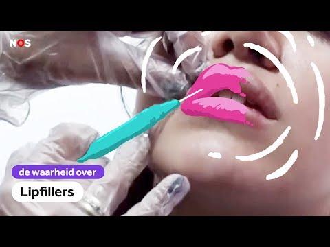 ILLEGAAL je lippen OPSPUITEN | De waarheid over LIPFILLERS