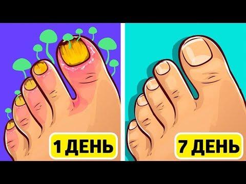 Грибок ногтя как выглядит