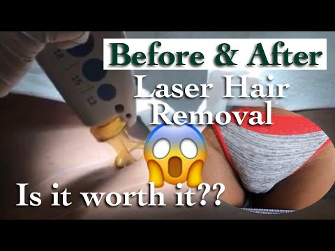 MY FULL LASER HAIR REMOVAL EXPERIENCE | Before & After