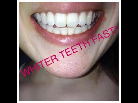 How To Whiten Teeth With Turmeric Youtube