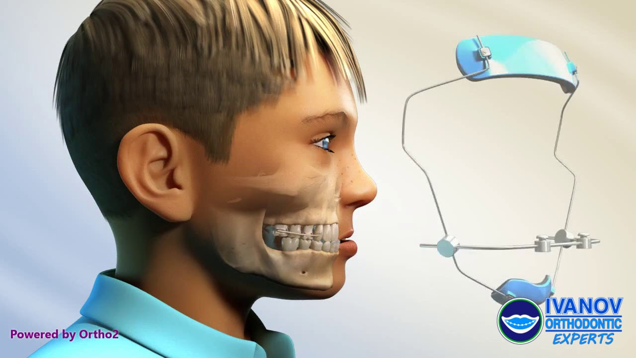Orthopedics Facemask with Expander