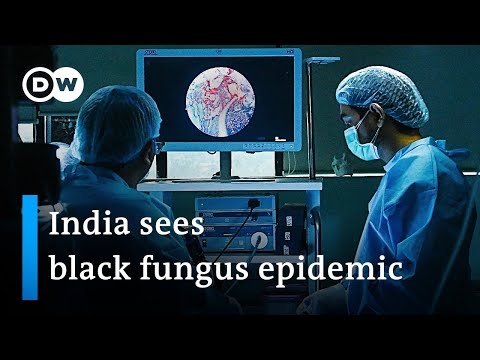 Why the deadly black fungus is ravaging among COVID patients in India | DW News