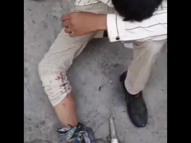 Un jeunes lycéens blessé par balles lors de la manifestation à Lordegan en Iran