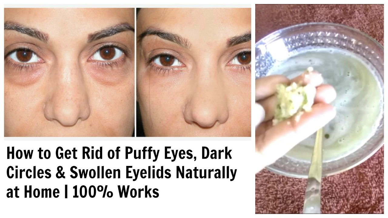 How To Get Rid Of Dark Eyelids Naturally