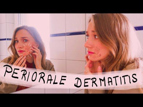So Wirst Du Deine Periorale Dermatitis Los!