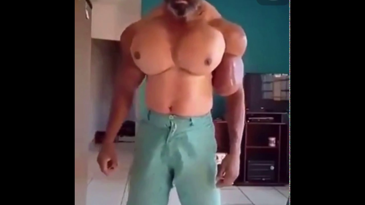 Piqure injection Synthol muscles : Horrible !