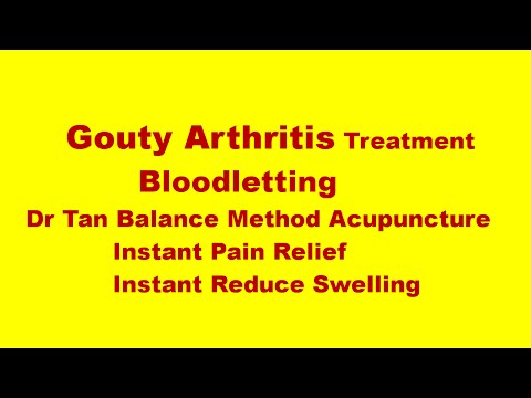acupuncture treatment for arthritis essay I am a patient / caregiver treatments herbal remedies, supplements & acupuncture for arthritis herbal remedies, supplements & acupuncture for treatment of.