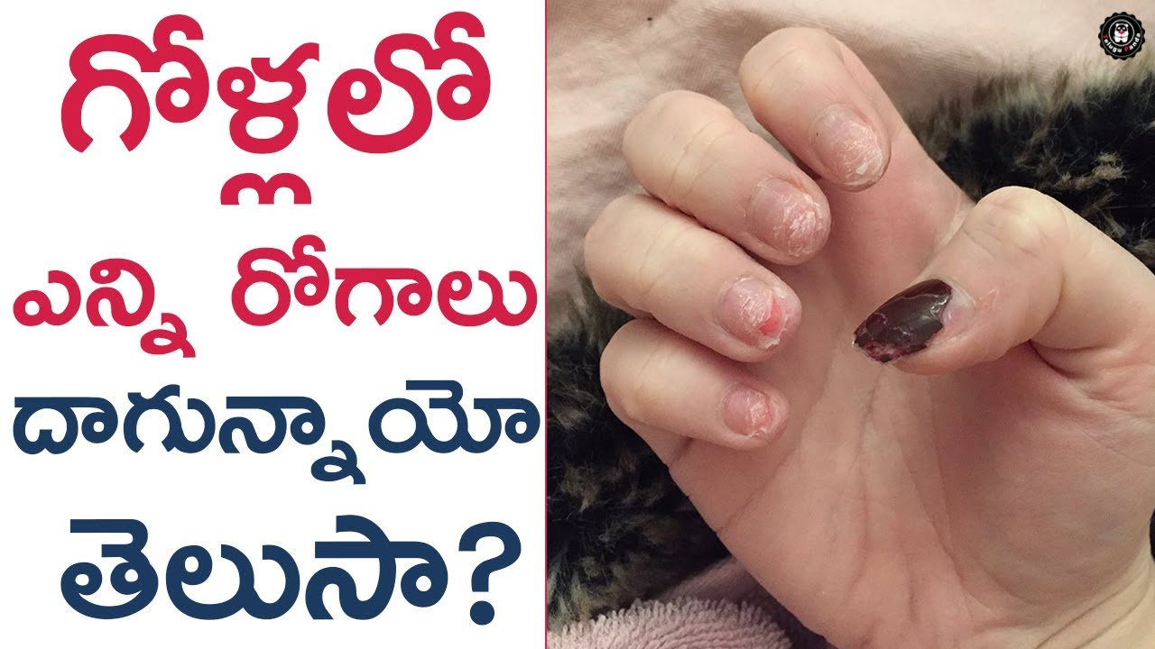 Shocking & Interesting Facts about NAILS   Unknown Facts about Nails ...