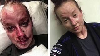 GRAPHIC IMAGES: Female Officer Assaulted by College Athlete