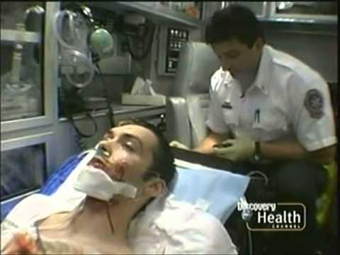 Paramedics: Conrad Ballare vs. MVA Head Injury + Shooting