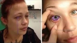 அந்த இடத்தில் Tattoo குத்தி ஆபத்தில் சிக்கிய பெண் | Tamil Cinema News | Latest News | Tamil News
