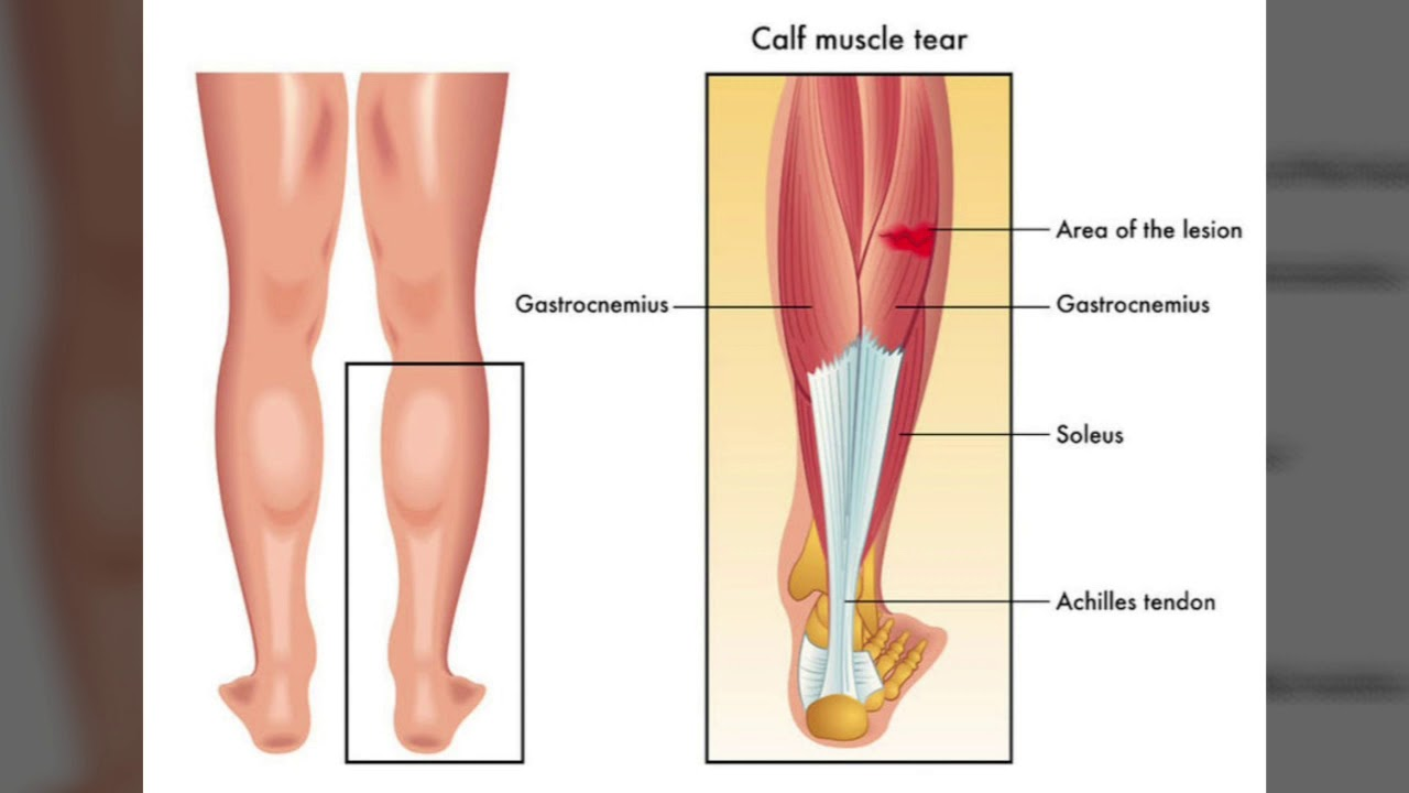 intindere musculara genunchi