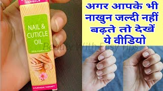 Vaadi Herbal Nail & Cuticle Oil with Jojoba Oil 😮😮|| Beauty With Easy Tips