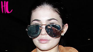 Kylie Jenner Admits She Made Her Lips Too Big - Interview