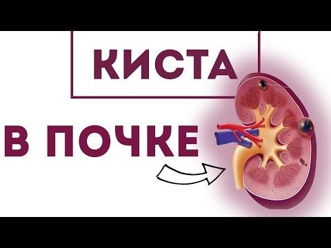 Киста яичника: причины, симптомы, лечение и удаление