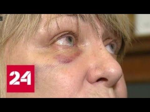 В центре Москвы автохам избил женщину за замечание - Россия 24