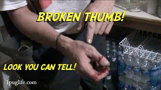 exploding tire nearly severs thumb (warning graphic!!!)