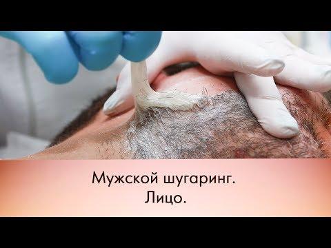 Мужской шугаринг.Лицо/Men's Sugaring On The Face