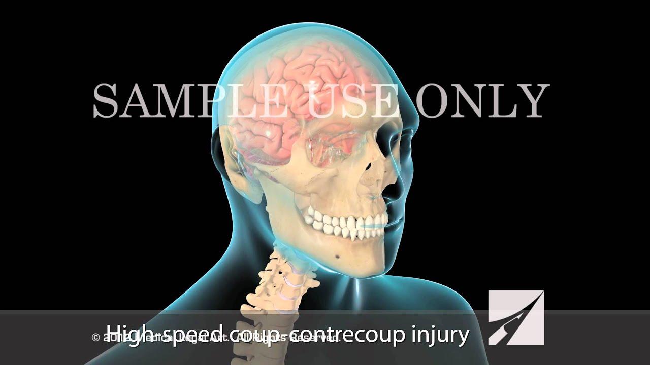 Mild Traumatic Brain Injury