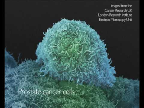 Electron microscopy of cancer cells, from Cancer Research UK-funded scientists