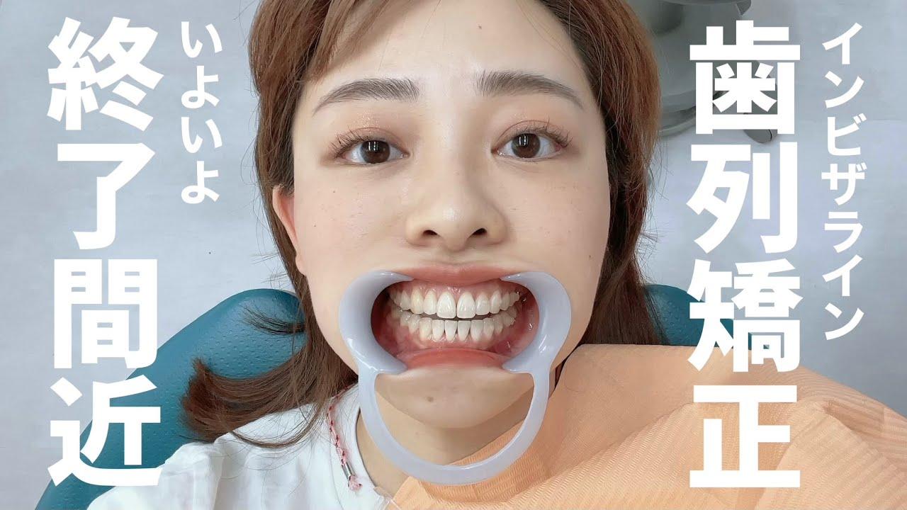 【歯列矯正経過報告🦷】インビザライン矯正がようやく終わりそうです!