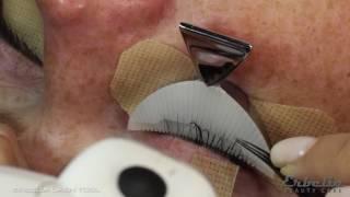 Erbelia Lash Tool (ELT) training - easy lash separation