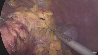 Laparoscopic distal subtotal pancreatectomy