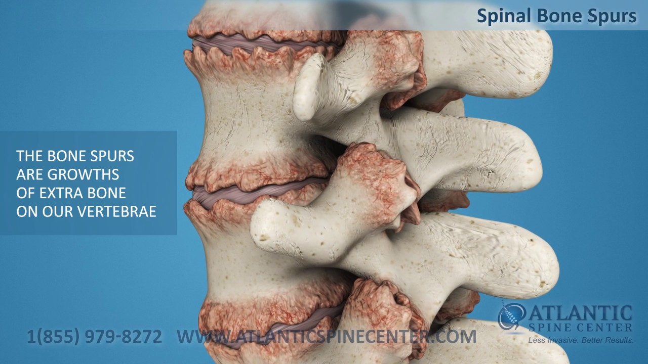 Spinal Bone Spurs Youtube