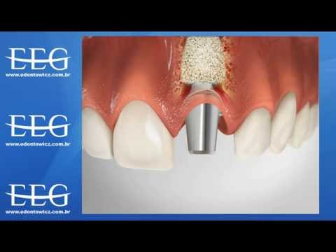 Implante substitui a raiz do dente