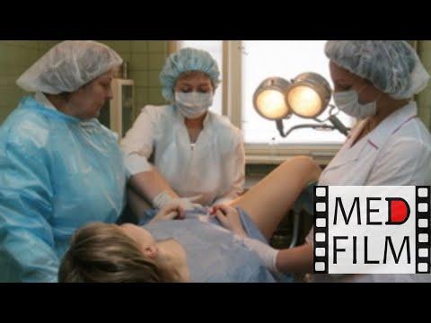 Водянка беременных -