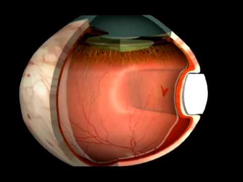 Отслоение сетчатки глаза: симптомы, причины, лечение