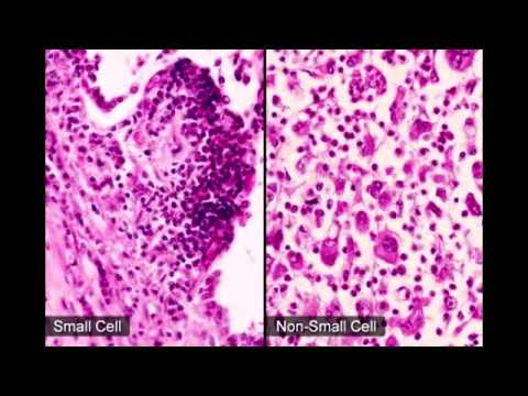 Small Cell (Oat Cell) Carcinoma of the Lung - YouTube