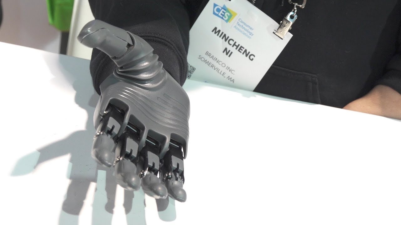 Brain Robotics is Pioneering Affordable 3D Printed Prosthetics