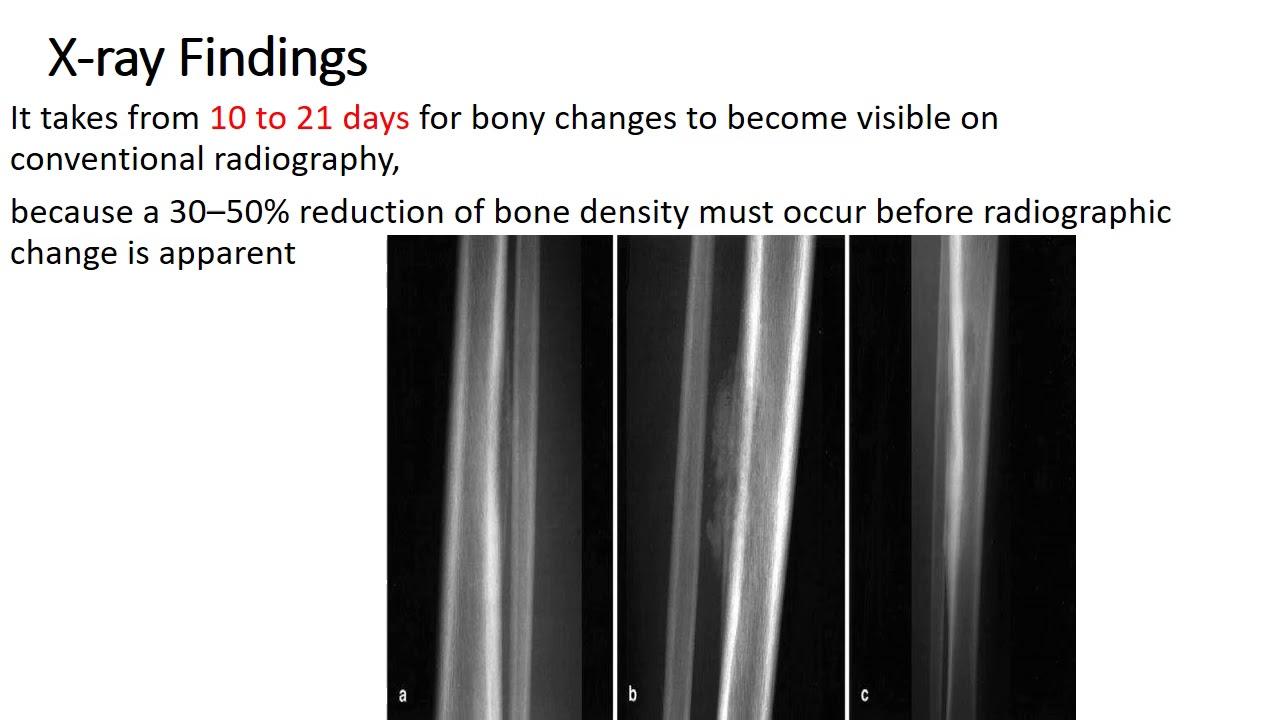 Dr. Abdullah Farooq Orthopaedic Lecture 4th year MBBS 17/03/2020 Topic:Osteomyelitis #Orthopedicsurgery