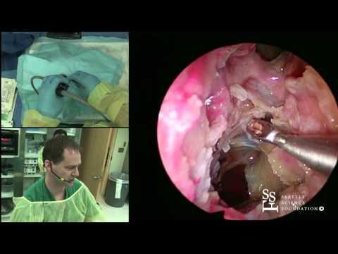 Orbital & Optic Nerve Decompression, Endoscopic DCR Demonstration by Greg Davis, MD