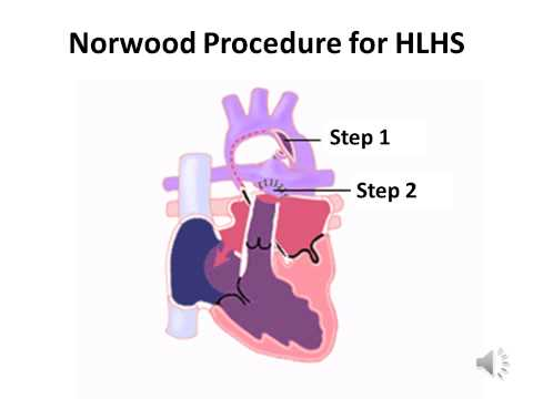 Norwood Procedure for Hypoplastic Left Heart Syndrome