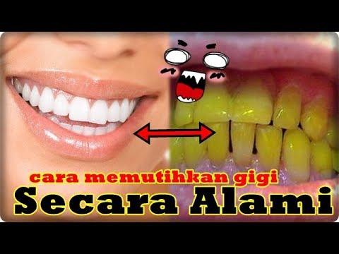 Cara Memutihkan Gigi Secara Alami Youtube