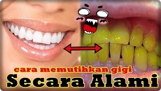 Cara Memutihkan Gigi Di Rumah